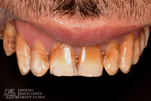 Stained or Discolored tooth 4