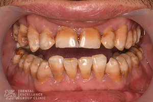 Stained or Discolored tooth 1