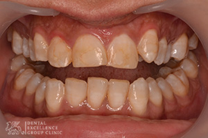 Stained or Discolored tooth 6