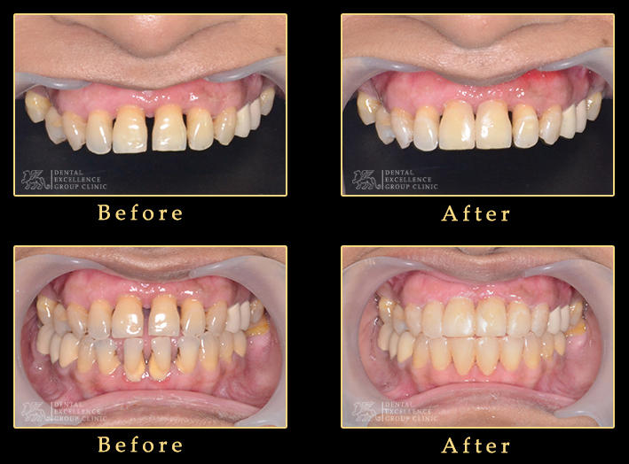 Cosmetic Dentistry Dentist In Bangladesh Center For