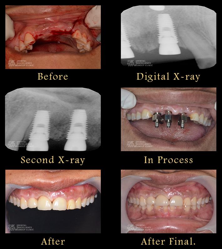 Upper anterior Implant