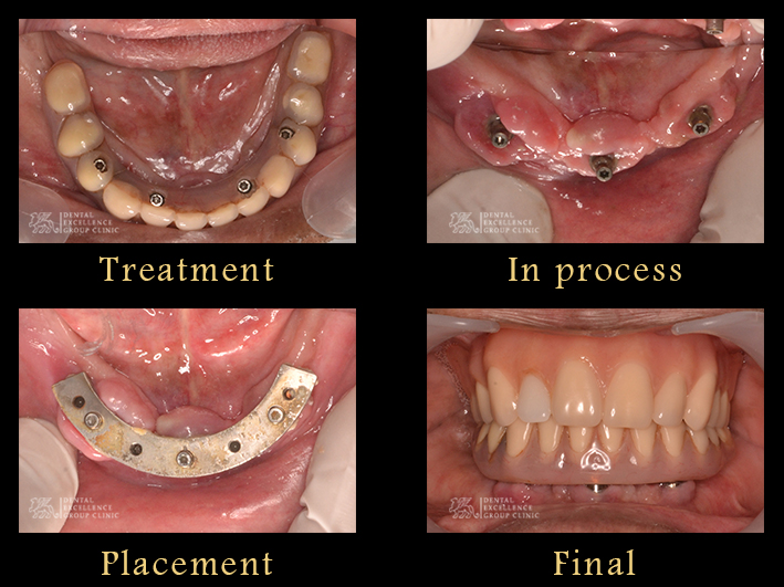 Implant overdenture lower jaw