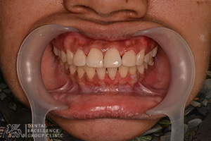 Cosmetic Dentistry 3
