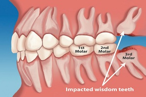 Tooth Pain 2
