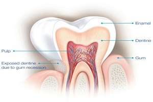 Tooth Pain 3