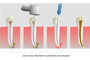 Tooth Pain 5