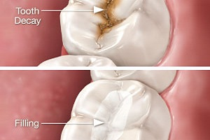 Tooth Pain 6