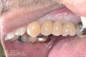Missing Teeth 4