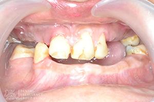 Missing Teeth 3