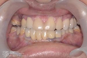 Missing Teeth 6