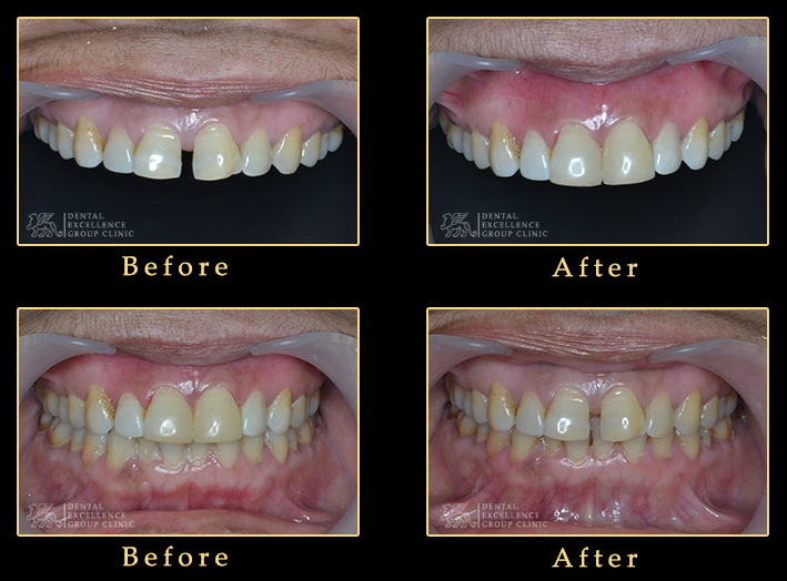 diastema clouser with composite