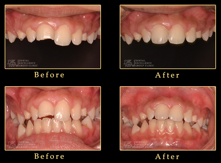 Broken teeth cosmetic buildup
