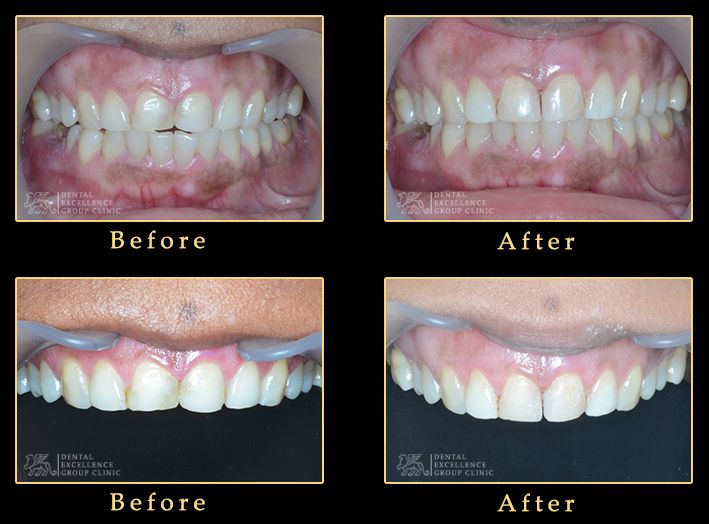 Teeth cosmetic reshaping with composite