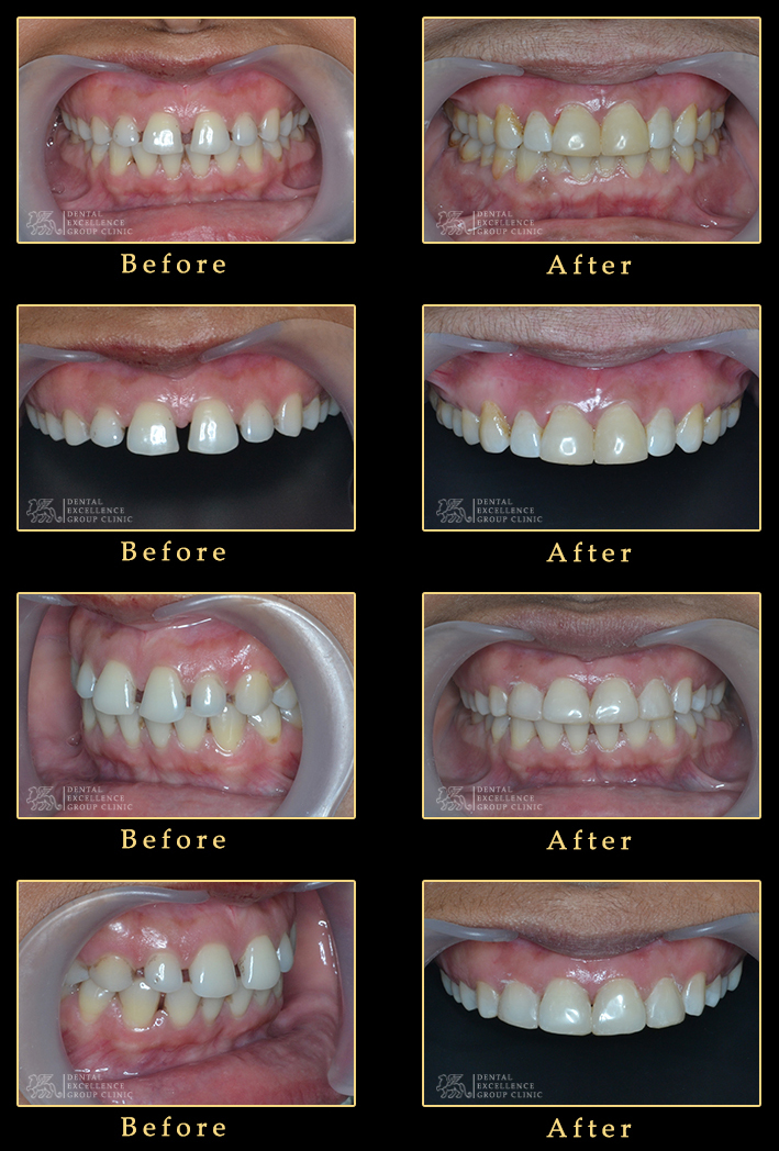 Smile makeover with composite