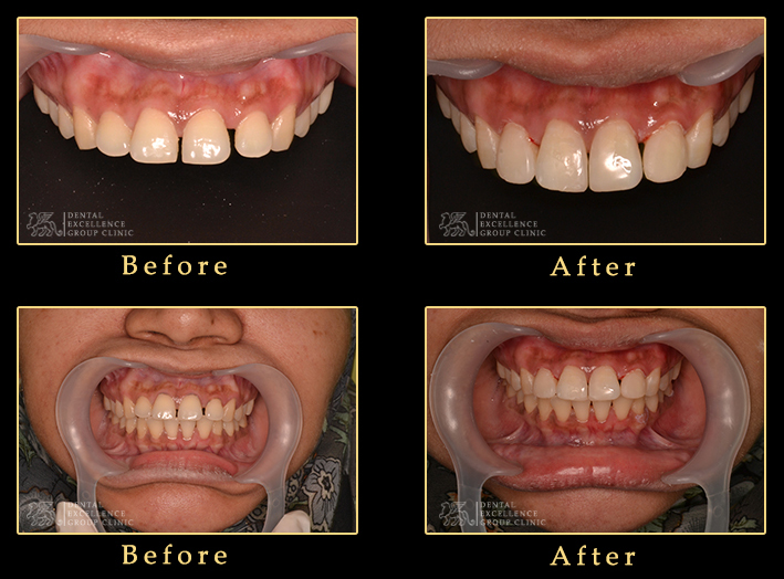 Composite smile makeover