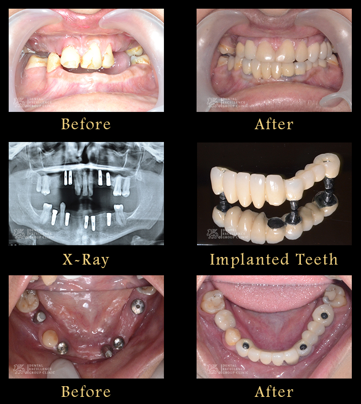 Full Mouth Rehabilitation