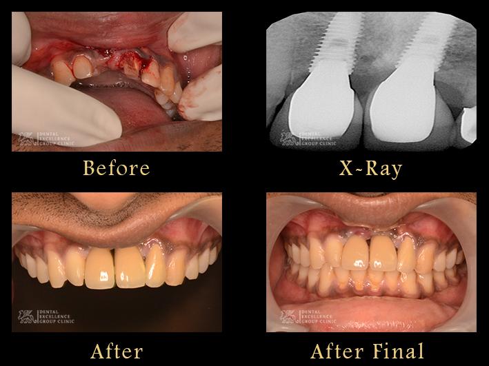 Implant Case Anterior