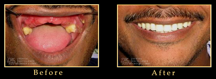 Dentist In Bangladesh Center For Advanced Amp Cosmetic Dentistry